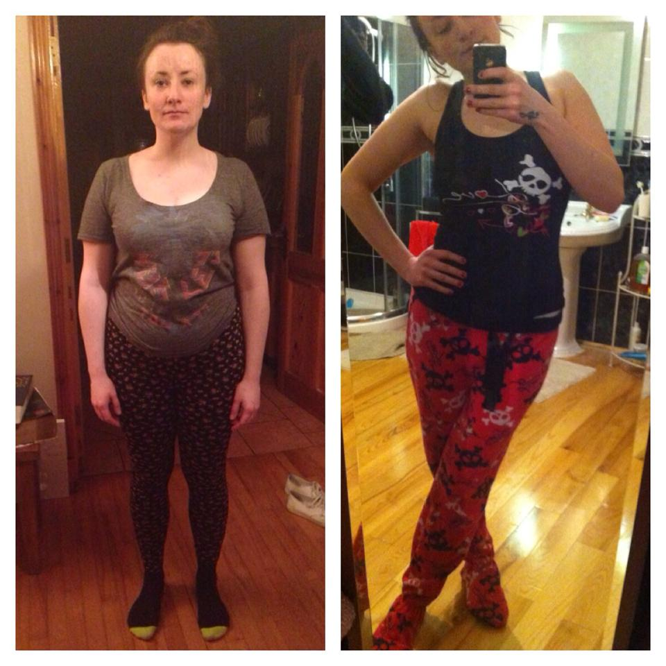 Million Dollar Fitness Before and After Weight Loss L'Derry